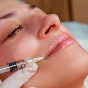 medicina estética facial aumento de labios